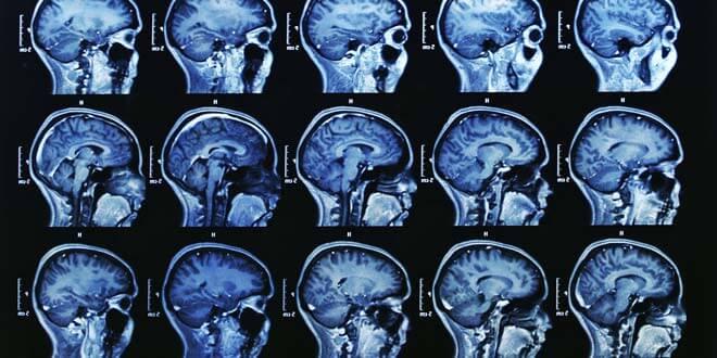 MRI 腦成像素描