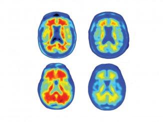 腦退化症患者在接受抗體治療後,大腦中的澱粉樣蛋白斑塊幾乎完全消失(圖:Sevigny et al.)